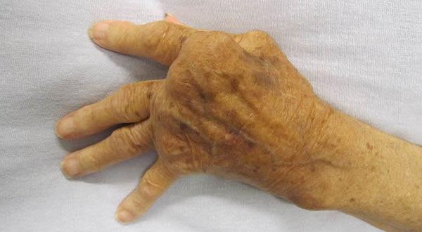 Una mano affetta da artrite reumatoide. Autore James Heilman, MD. Licensed under the Creative Commons Attribution-Share Alike