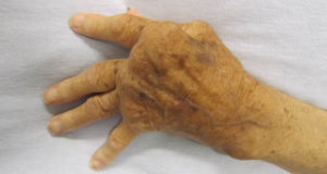 Una mano affetta da artrite reumatoide. Autore James Heilman, MD. Licensed under the Creative Commons Attribution-Share Alike